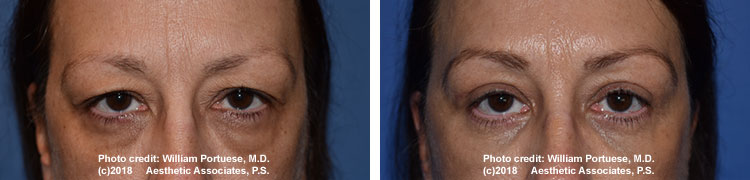 eyelid surgery in Oregon