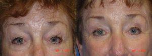 Eyelid Surgery Fort Myers FL